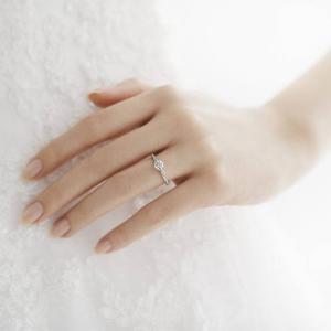 金属アレルギーに悩む彼女に喜んでもらえる婚約指輪の選び方